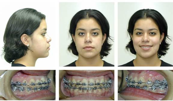 Patient #4 After Orthognathic Surgery