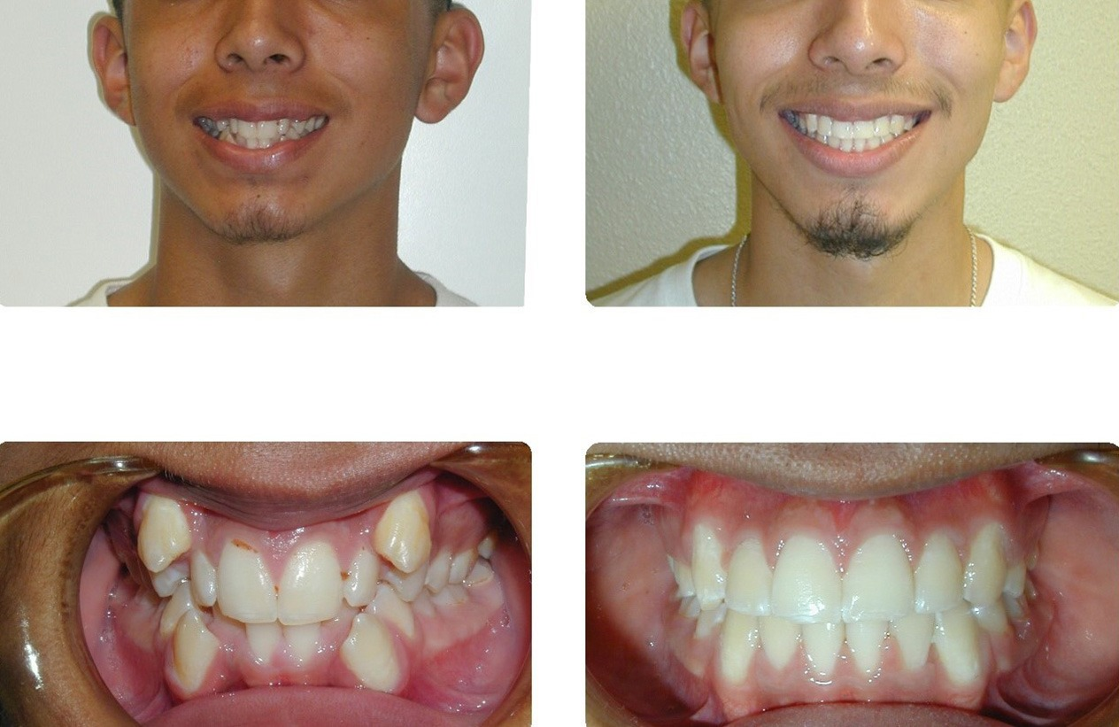 Orthodontic Before And After Photos Brodsky Orthodontics